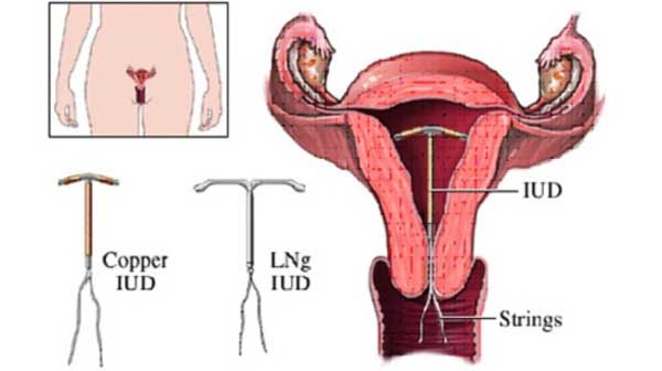 Đặt vòng tránh thai loại nào tốt cho chị em phụ nữ?