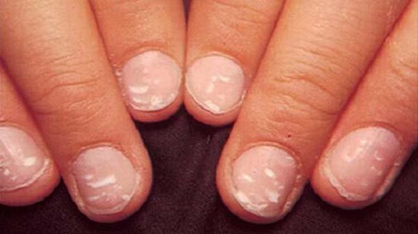 Đốm trắng trên móng tay là bệnh gì ?