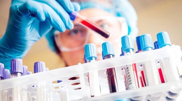 Có nên xét nghiệm máu phát hiện ung thư không ?
