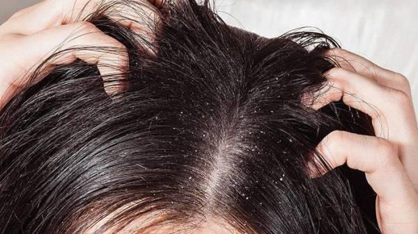 Lý do da đầu bị gàu thời điểm chuyển mùa