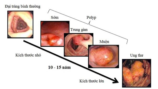Phát hiện sớm ung thư đại trực tràng